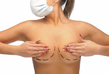 What to Expect After a Breast Reduction Procedure
