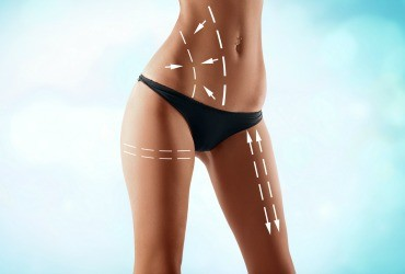 Liposuction Procedure Houston