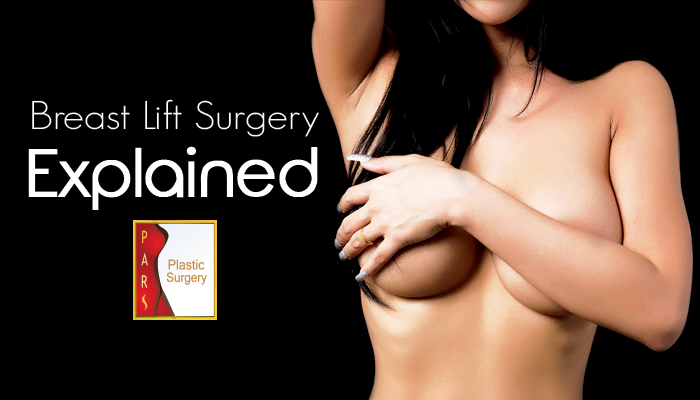 Breast Lift Surgery Explained
