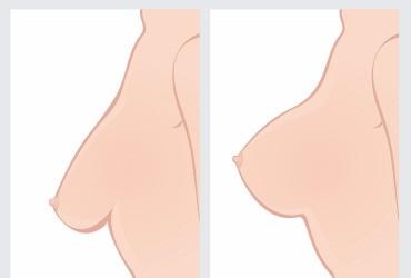 Breast Lift Procedure