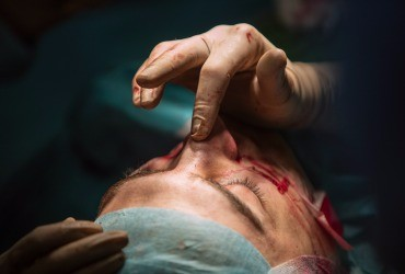 Rhinoplasty Procedure